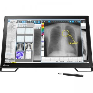"Eizo RadiForce MS236WT 2MP 58cm (23.0"") Multitouch Color LCD Monitor MS236WT-BK"