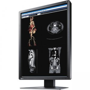 Eizo RadiForce Widescreen LCD Monitor MX216-BK